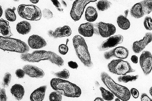 febbre q nel cane al microscopio