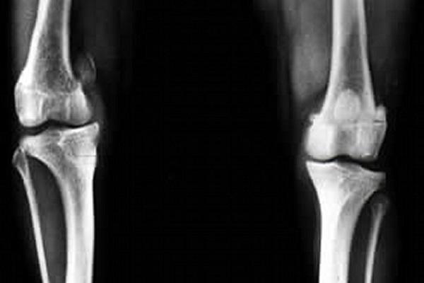 radiografia di lussazione della rotula nel cane