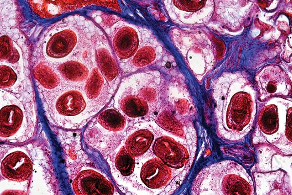 parassita nel cane al microscopio